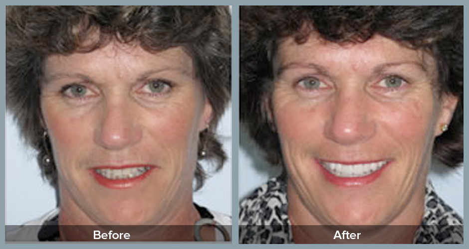 Invisalign Results at Invisalign Accredited Auckland Dentist